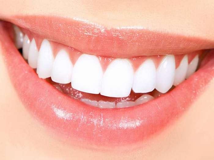Как отбелить зубы в домашних условиях за три минуты