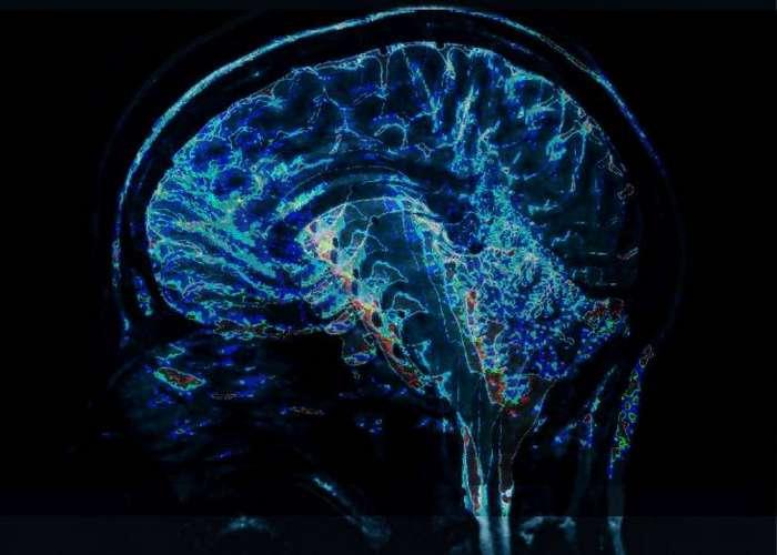 35 коротких фактов о мозге, которые помогут вам лучше понять, как он работает
