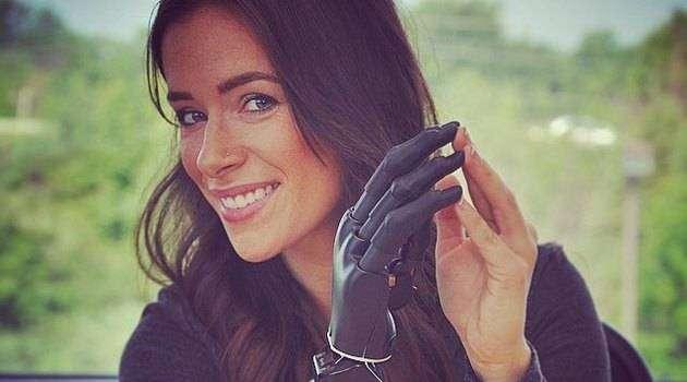 Модель с протезом руки примет участие в Неделе моды