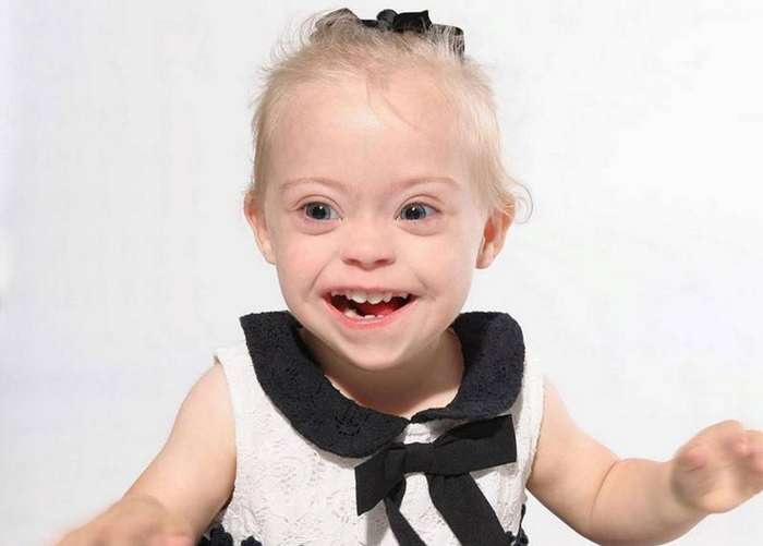 Двухлетняя девочка с синдромом Дауна стала моделью благодаря своей лучезарной улыбке