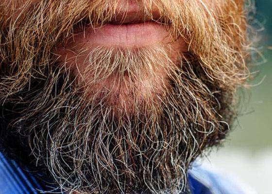 В год 1567 Австриец Ханс Штайнингер споткнулся о бороду и умер
