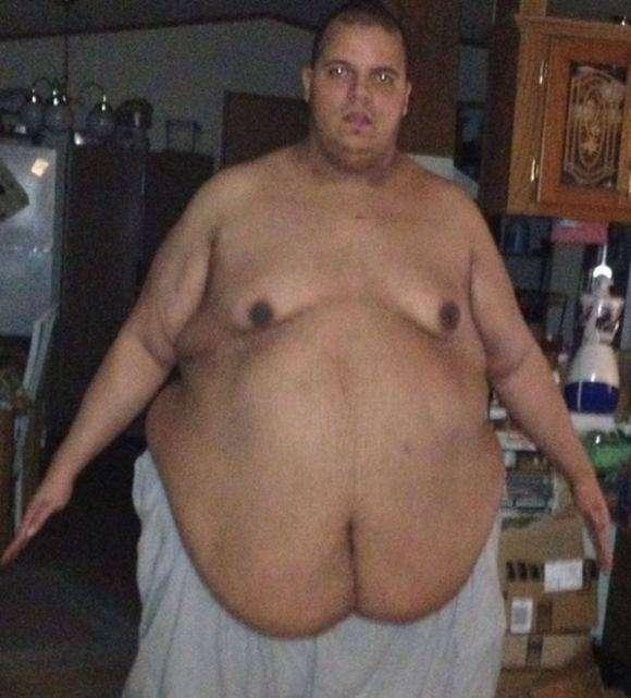 Мега похудение  на 181 кг (7 фото)