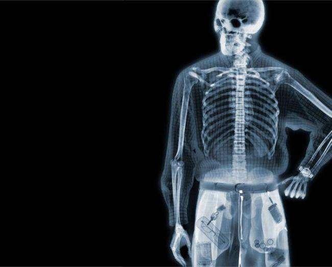 10 самых необычных вещей, когда-либо побывавших в теле человека