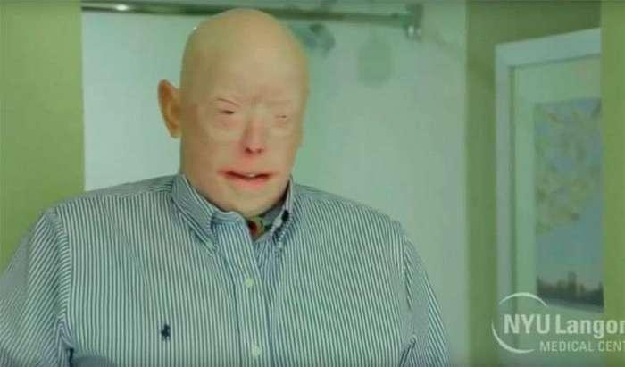 Пожарному пересадили рекордное количество лицевой ткани, практически полностью заменив лицо надонорское Reuters