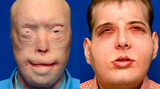 Врачи провели первую вистории операцию пополной пересадке лица