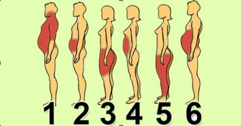 6 типов ожирения: о чём говорят лишние сантиметры на твоем теле.