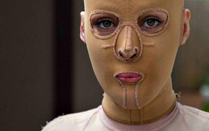 Некогда чуть не сгоревшая заживо австралийка наконец сняла свою маску