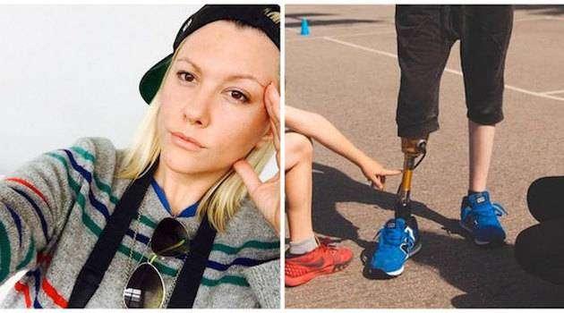 24-летняя модель потеряла ногу из-за использования тампонов
