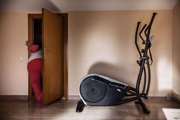 История девушки, похудевшей на более чем 50 килограммов благодаря шунтированию желудка