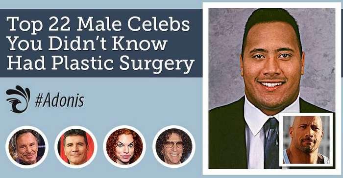 22 знаменитых мужчины, о которых вы не знали, что они делали пластические операции (23 фото)