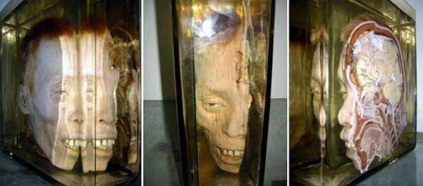 Шокирующие медицинские экспонаты, хранящиеся в различных музеях