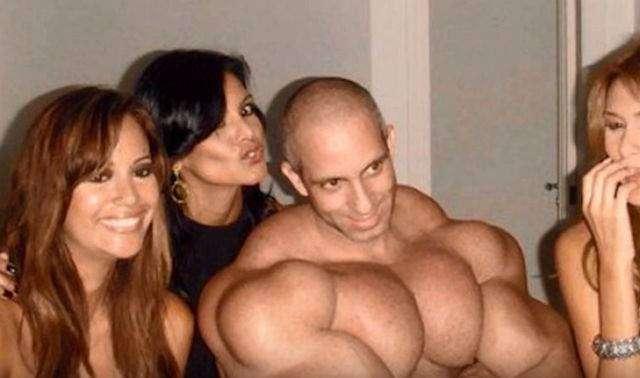 Синтол: когда гигантские мышцы дороже, чем жизнь