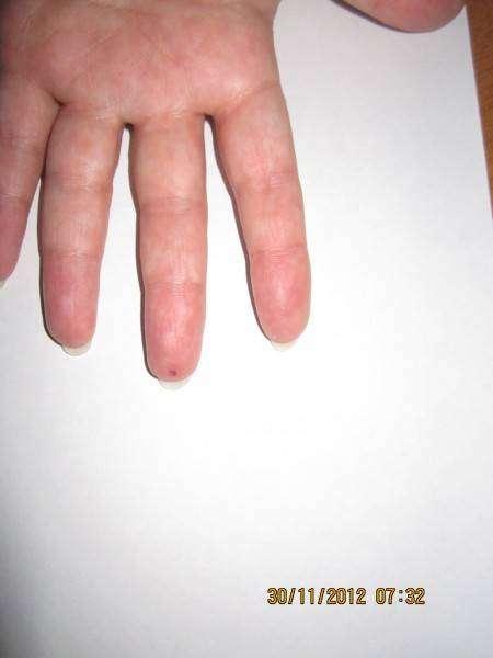 Если у вас мёрзнут руки... простая рекомендация