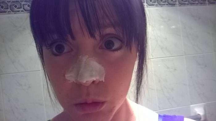 Терплю ради очищения носа от черных точек