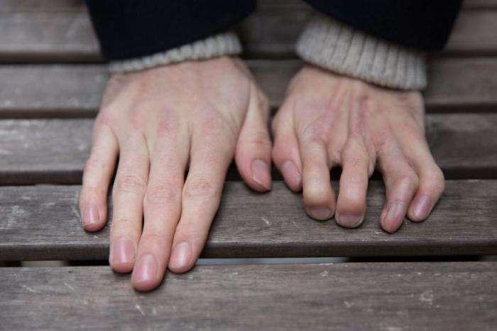 Нелегко пить кофе, когда у тебя на руке пальцы ноги (3 фото)
