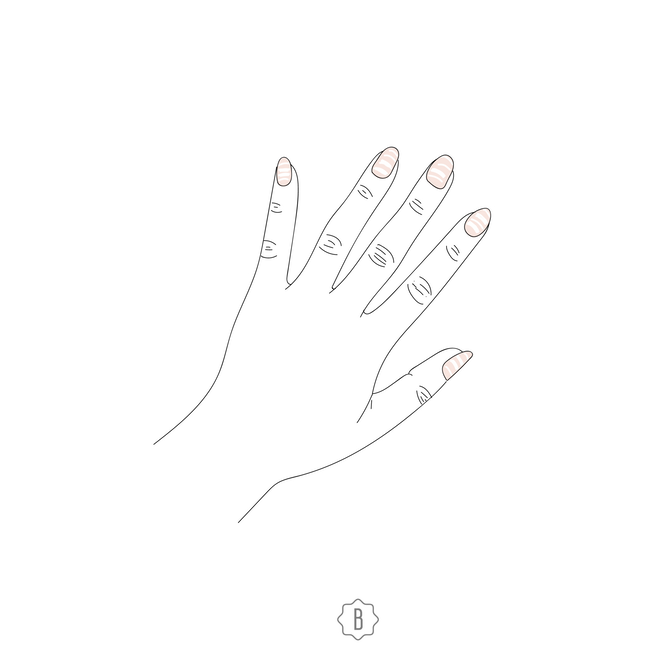 Горизонтальные белые полосы указывают на проблемы в работе печени и почек.
