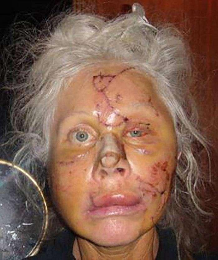 Женщина опубликовала свою фотографию после нападения медведя (3 фото)