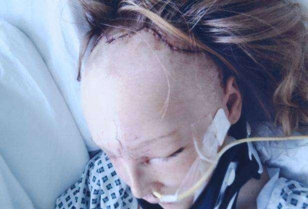 Хирурги сняли лицо девочке, попавшей в аварию, чтобы собрать череп (5 фото)