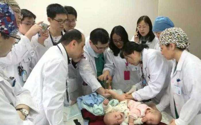 Успешная операция по разделению сиамских близнецов  (13 фото)