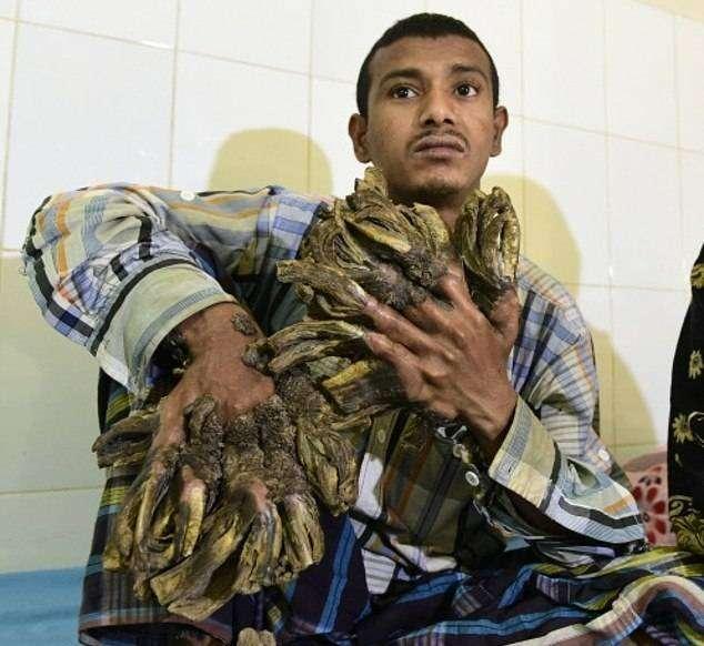 Семья из Бангладеш превращается в дерево (8 фото)