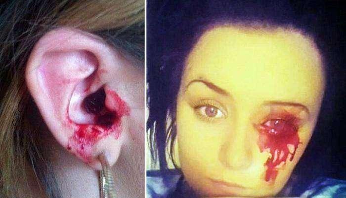 Врачи не могут помочь девушке с загадочным кровотечением (2 фото)