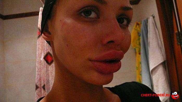 Неудачные большие губы фото 1
