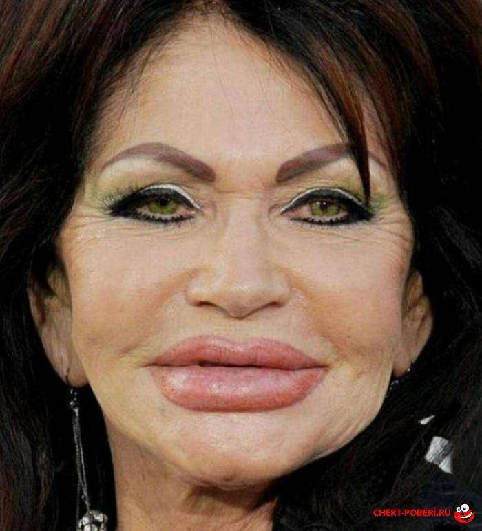 Неудачные большие губы фото 3