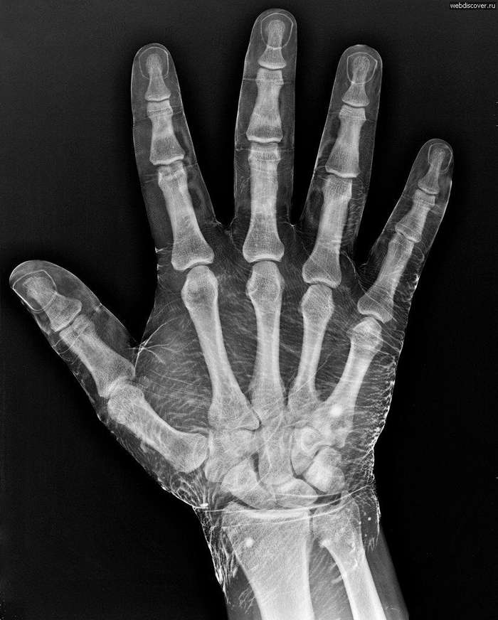 Почему у человека пять пальцев?
