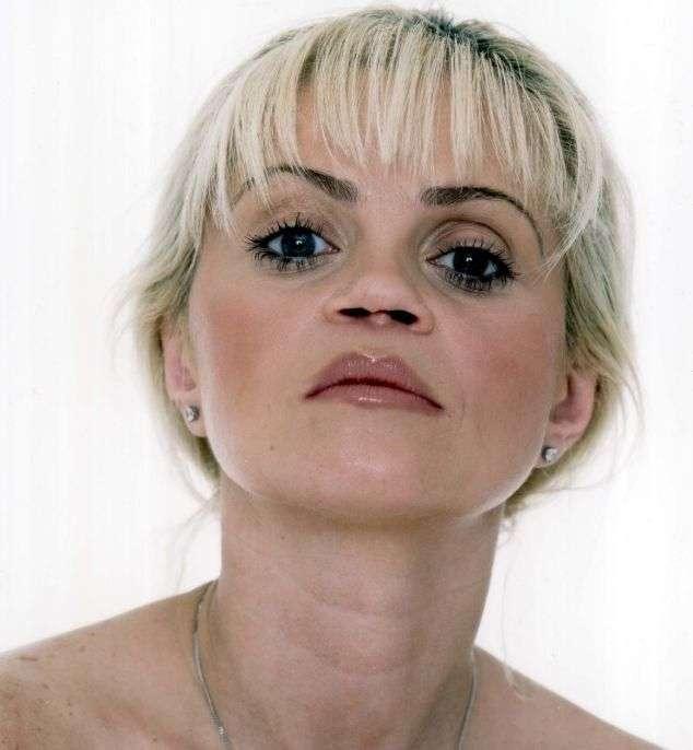 Как изменяет нос за десь лет использования кокаина