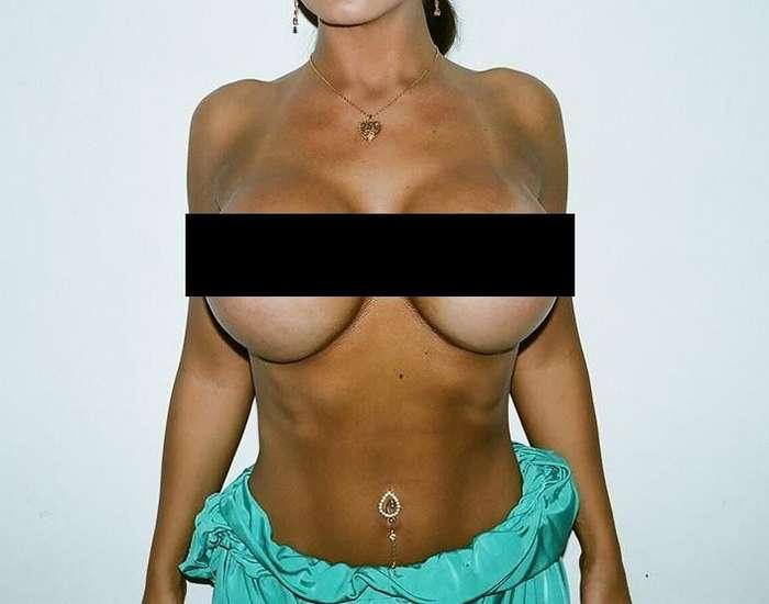 Что можно заполучить с помощью искусственного увеличения груди