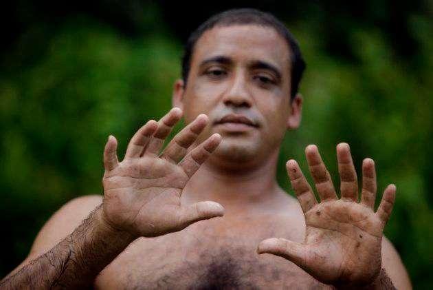 Анатомические чудеса: 27 самых необычных в мире людей