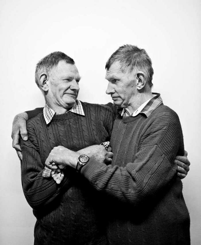 Знаменитое фото Дрези и Кэзи, история близнецов