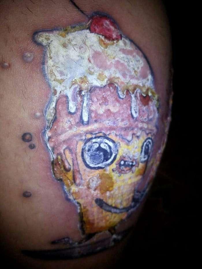 Как выглядит аллергия на краску для татуировки