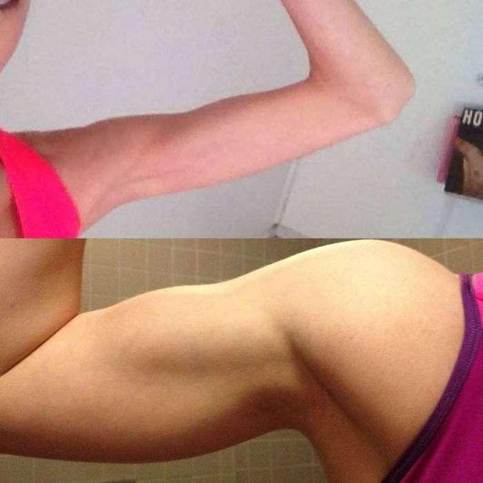 Лучший способ вылечить анорексию - отправиться в спортзал