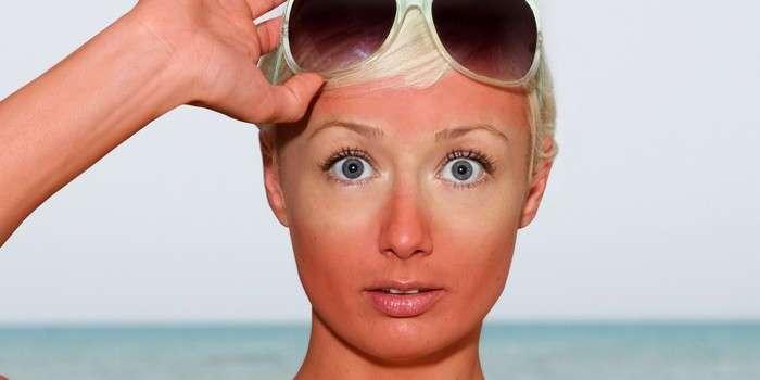 9 способов скрыть следы солнечных ожогов и быстро восстановить кожу