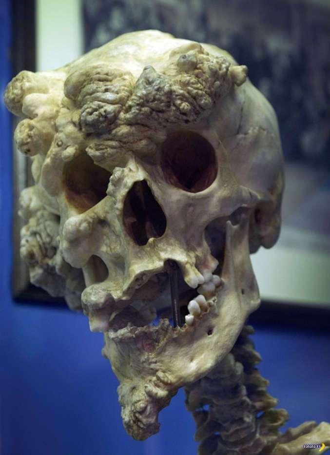 Человек-слон Джозеф Меррик и его череп