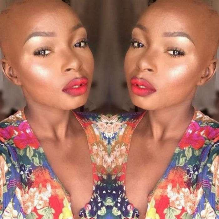 Девушка с сильнейшими ожогами лица наглядно показывает силу макияжа