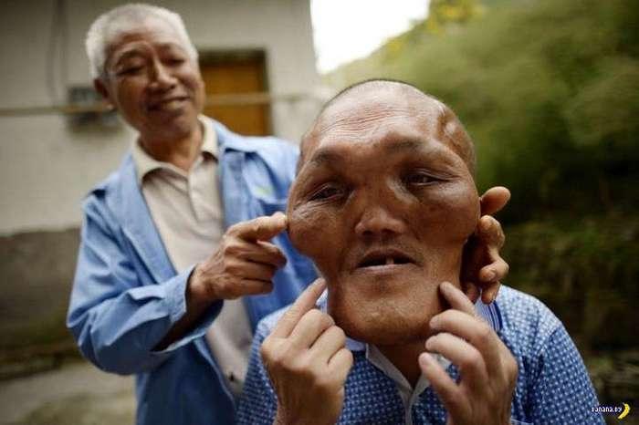 Гиперплазия сделала из фермера инопланетянина