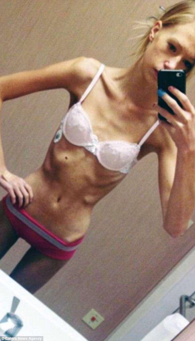 Стремящаяся похудеть девушка весила всего 36 килограммов и чуть не умерла