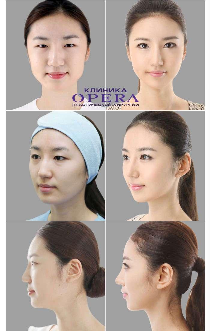 Пластические операции в Южной Корее: фото до и после