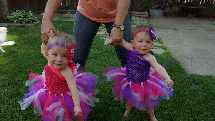 Близняшки, родившиеся держась за руки, и спустя 2 года невероятно близки