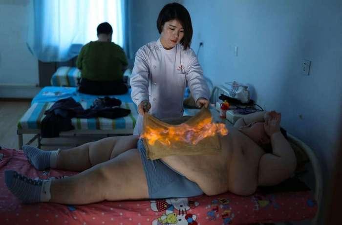 Ради лечения ожирения 11-летнего ребенка решили поджечь