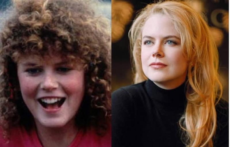 28 знаменитостей, которые раньше были гадкими утятами