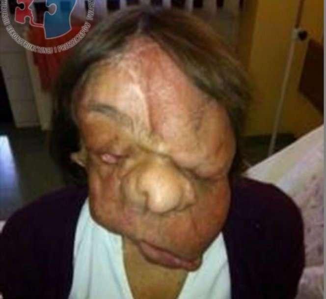 Через три года после пересадки лица женщина стала выглядеть нормально