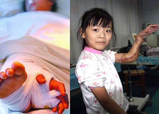 5 фактов о трансплантации органов