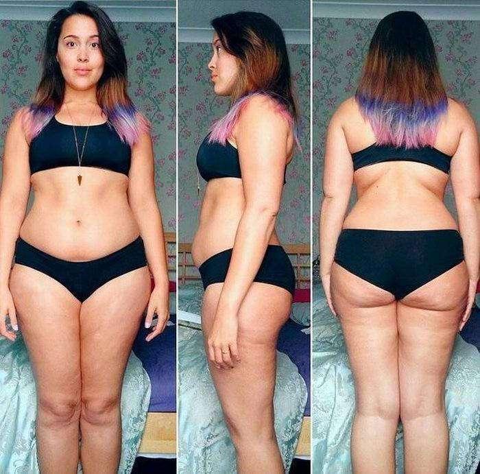 Девушка едва не умершая от анорексии набрала вес и публикует свои фото в бикини, чтобы помочь другим