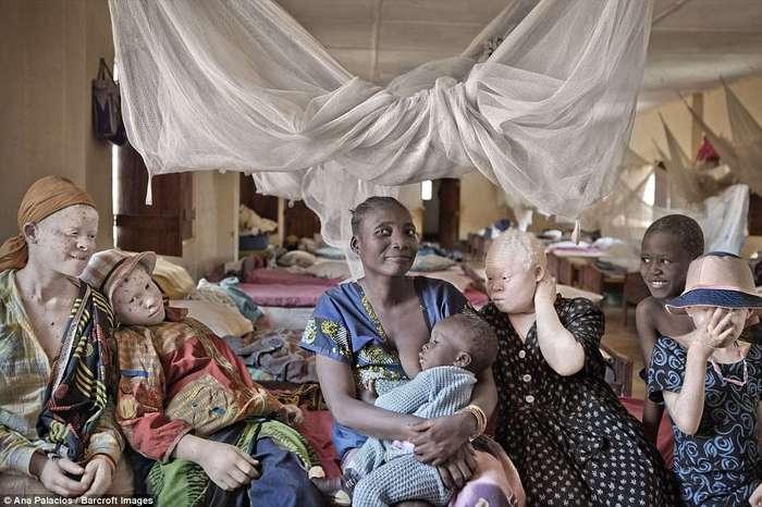 Деревня проклятых: в Танзании создали убежище для альбиносов