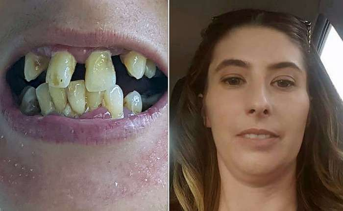 Женщине удалили 20 зубов, чтобы избавить её от чудовищно кривых зубов