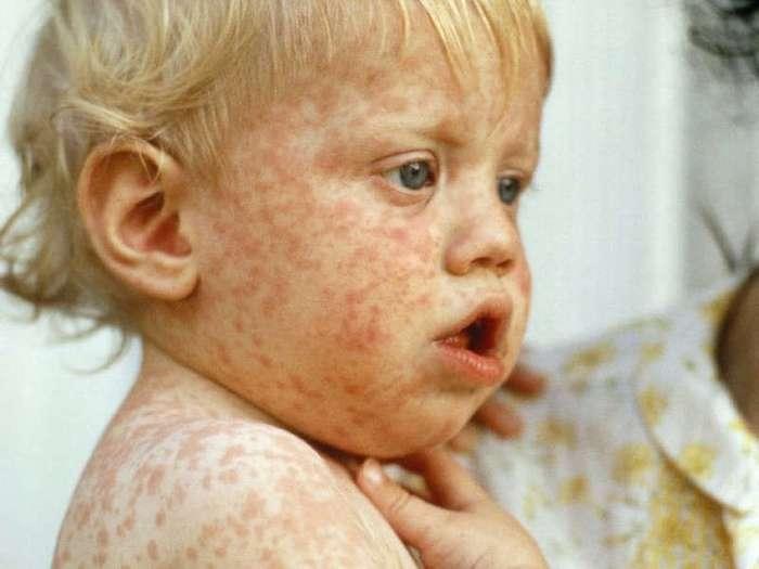 12 развенчанных мифов о смертельных болезнях