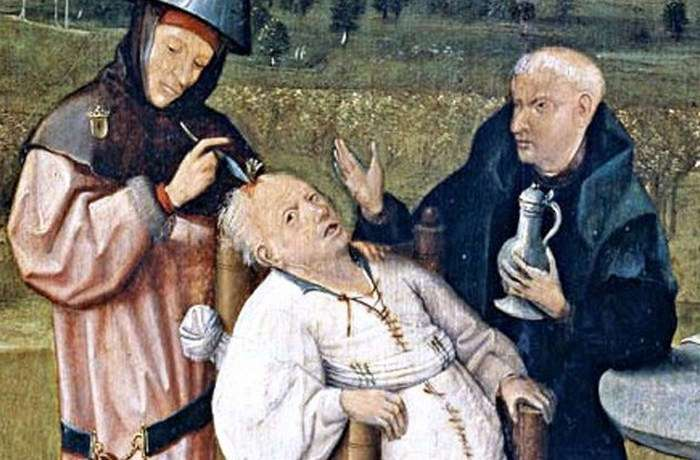 Варварские медицинские процедуры, которые практикуются до сих пор